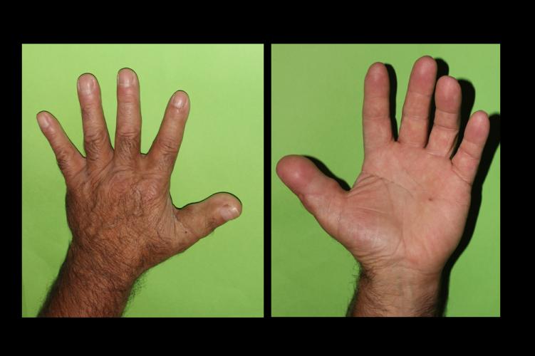 Clínica | Reconstrucción de los dedos mediante trasferencias de ...